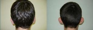 ניתוחי אוזניים