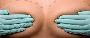 ניתוחים פלסטיים